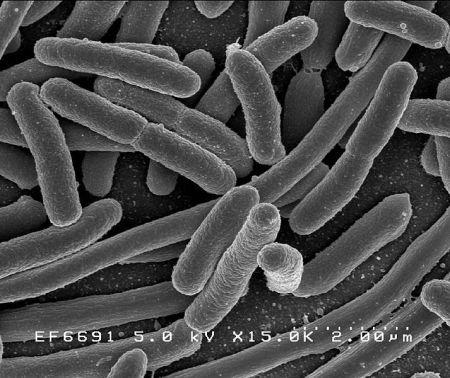 Escherichia coli, http://commons.wikimedia.org/wiki/File:EscherichiaColi_NIAID.jpg