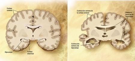 Comparación entre un cerebro normal y un cerebro afectado de alzhéimer