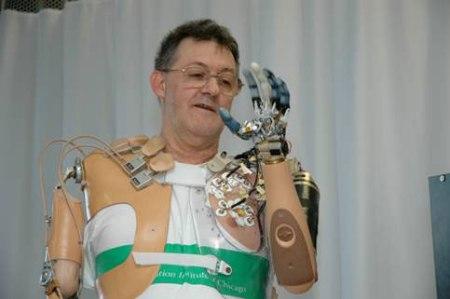 1. irudia: Beso bioniko baten erakusketa. (Iturria: DARPA/ Johns Hopkins University APL Laborategia).