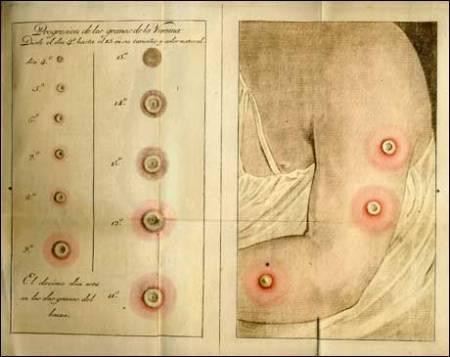 """Fases de los """"granos de la vacuna"""". Lámina de la introducción de Francisco Javier Balmis a su versión castellana del Tratado histórico y práctico de la vacuna, de J.L. Moreau."""